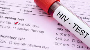 """Wirus HIV zagraża Europie jak nigdy dotąd. """"Alarmujące tempo epidemii"""""""